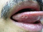 舌炎.JPG